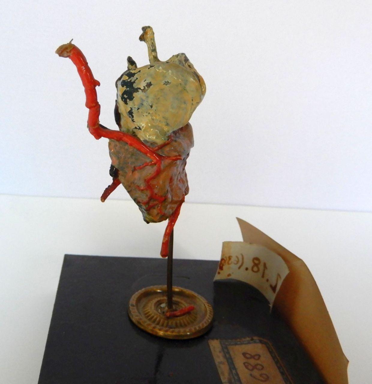 singolo reperto antropologico, arteria (morfologia/ struttura alterata post mortem per intervento antropico, trattato e colorato) (ultimo quarto XIX)