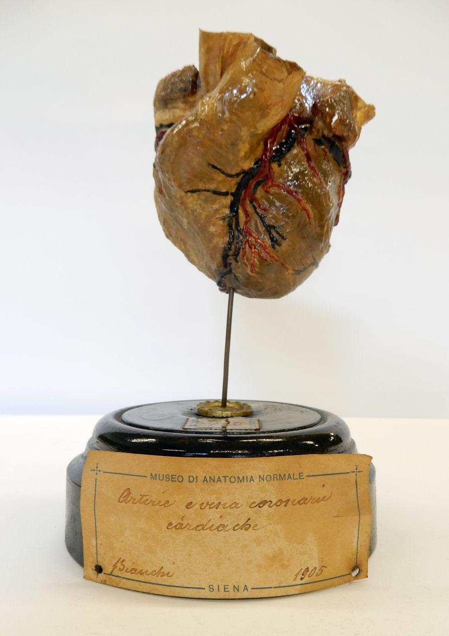 singolo reperto antropologico, preparato anatomico (cuore) (morfologia/ struttura alterata post mortem per intervento antropico, trattato e colorato) (primo quarto XX)